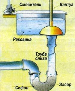 kanalizaciya-zasorilas